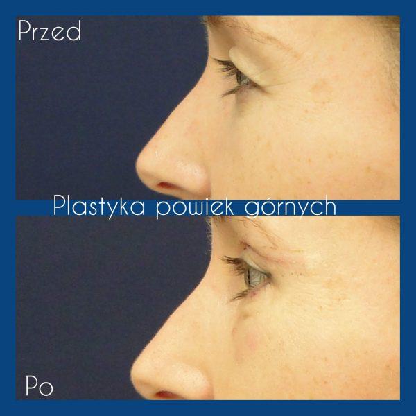 Korekcja powiek w Krakowie