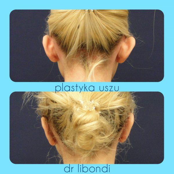 Operacja plastyczna uszu