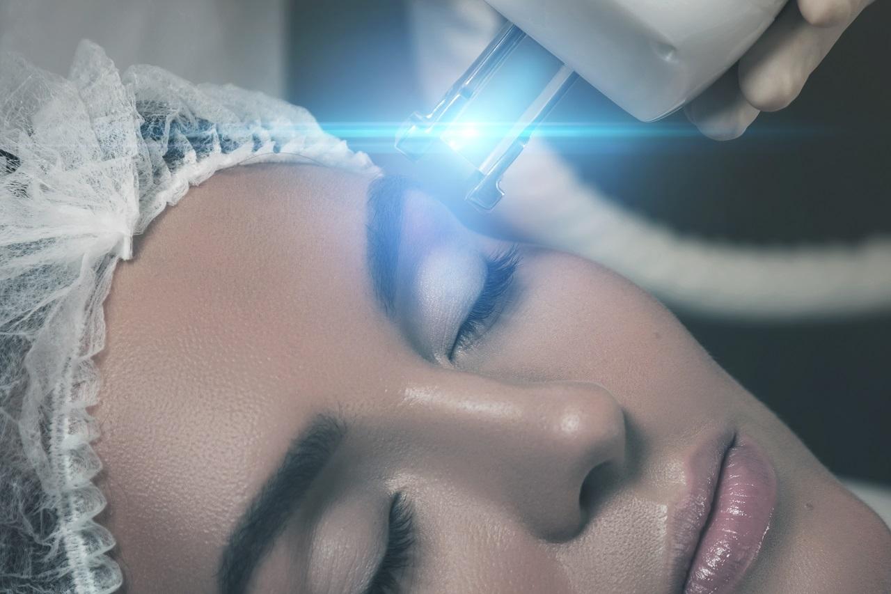 Laserowe odmładzanie twarzy