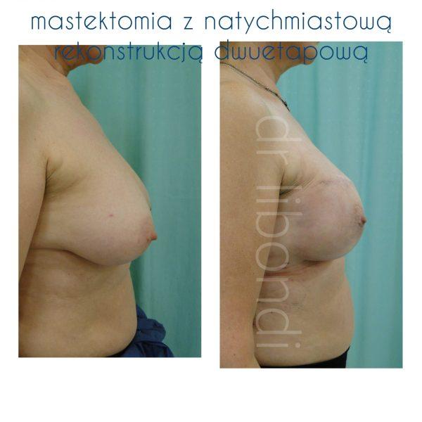 Profilaktyczna mastektomia z rekonstrukcją