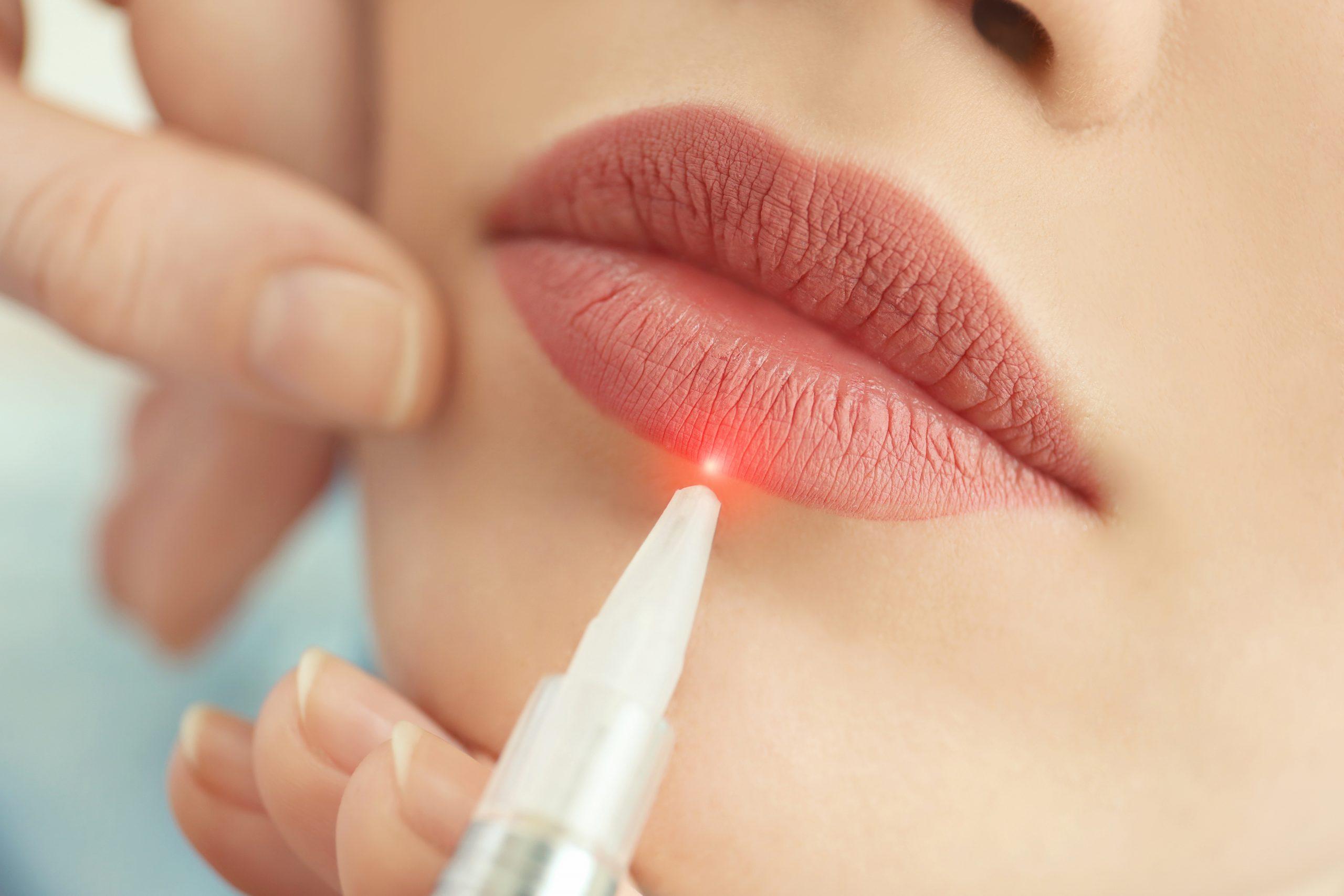 Laserowe usuwanie makijażu permanentnego: jak wygląda zabieg?