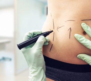 Liposukcja ultradźwiękowa: czym jest Vaser Lipo?