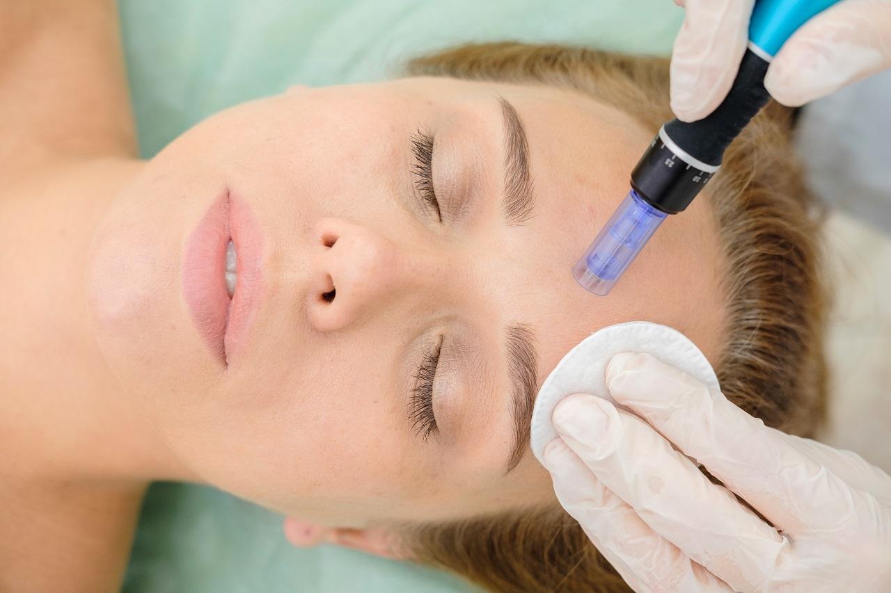 Mezoterapia: 6 ważnych pytań