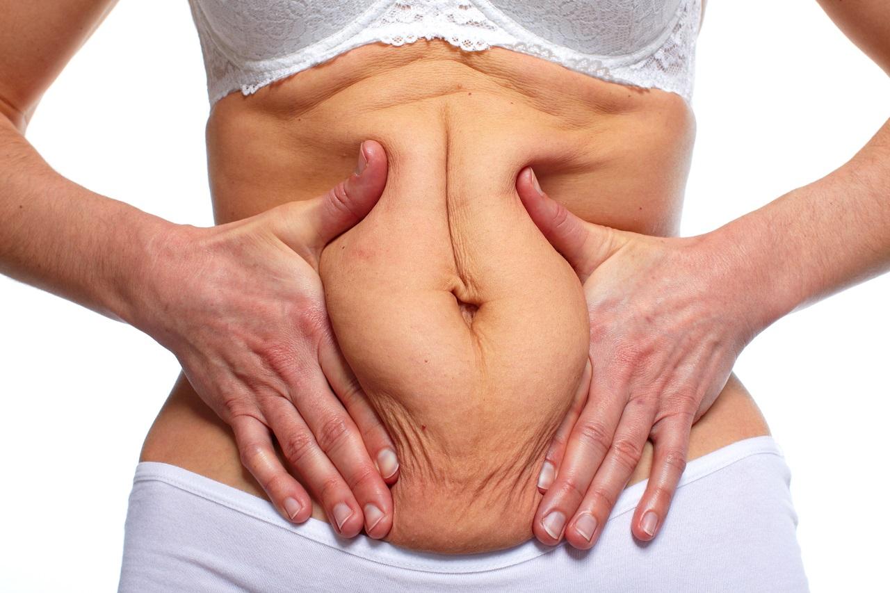 Plastyka brzucha: jak przygotować się do zabiegu?