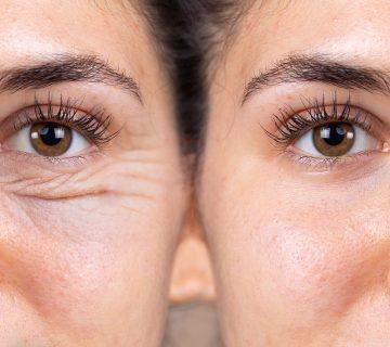 Cienie pod oczami: na czym polega zabieg chirurgiczny na podkrążone oczy?